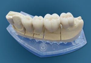 Dental Porcelain Fused to Metal Crowns Made in China Dental Lab pictures & photos