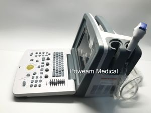 Ce Digital Portable Veterinary Ultrasound (WHYC30P VET) pictures & photos