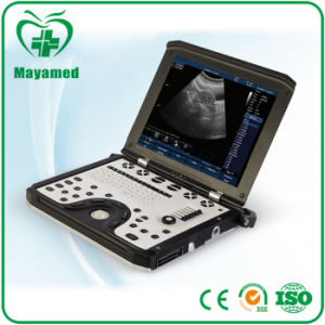 My-A039b Medical Portable Cardiac Ultrasound System 3D 4D Color Doppler Ultrasound Machine Price with Probe pictures & photos