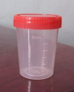Specimen Container Medical Urine Cup pictures & photos