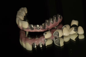 Dental CAD Cam Milled Implant Bridge From China Dental Lab pictures & photos