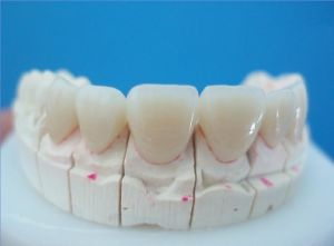 Dental All Ceramic E- Max Empress Crown and Bridge Made in China Dental Laboratory pictures & photos