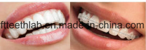 Orthodontic Aesthetic Invisible Occlusal Tray pictures & photos