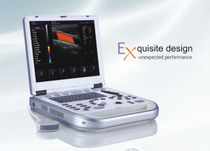 Lap Top Color Doppler Ultrasound Scanner Hy-M80 pictures & photos