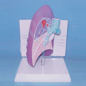 Medical Teaching Human Anatomic Lung Lesion Model (R090202)