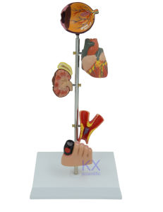 High Quality Medical Classical Diabetes Model