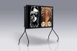 (Jusha-SUPER84T) de Medische Monitor van het Overleg van de Groep van de auto-Kaliberbepaling van Grayscale en van de Kleur