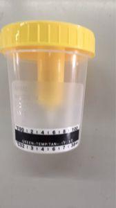 Garrafa de amostra de urina Cup com faixa de temperatura