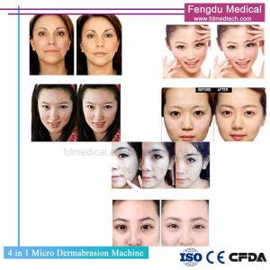 La tecnología de Corea 4 en 1 Chorro de oxígeno de pulverización Facial Microdermoabrasión la máquina