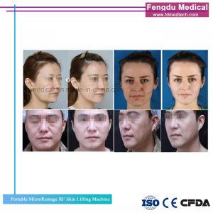 Eliminar las arrugas más RF térmicas Lifting Facial la belleza de la máquina en venta