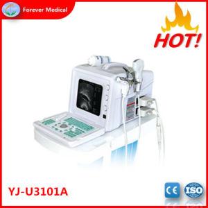 2018 de Hete Verkopende Medische Machine van de Ultrasone klank van Doppler van de Levering Draagbare (yj-U3101A)