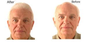 Ruw Minoxidil Poeder Rogaine voor de Mannelijke Alopecia van de Behandeling van het Verlies van het Haar