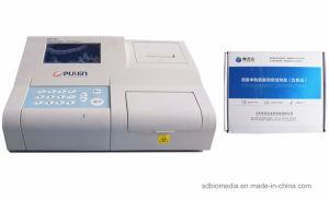Spectromètre de fluorescence/ Kit détecteur et de l'Hcy Assay