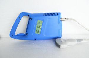 MCU-51353c de Volledige Digitale MiniMachine van de Scanner van de Ultrasone klank van de Palm