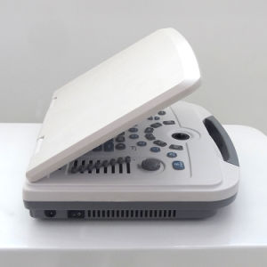Immagine libera e conveniente fare funzionare lo scanner bianco Mslpu09 di ultrasuono di Digitahi del nero completo del computer portatile