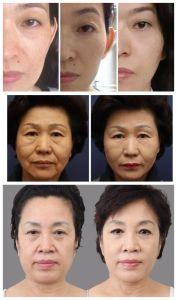 Mini-Hifu Face Máquina de Elevação da Faca de ultra-som focado de Alta Intensidade