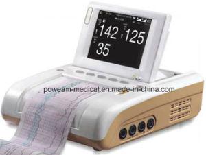 Монитор фетальной внимательности фетальный материнский (FM-10E)