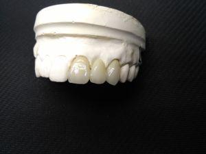 Productos dentales de los puentes de múltiples capas del Zirconia