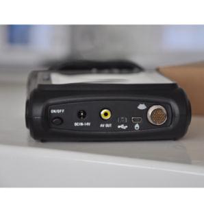 De mano Palm Digital completo escáner de ultrasonido