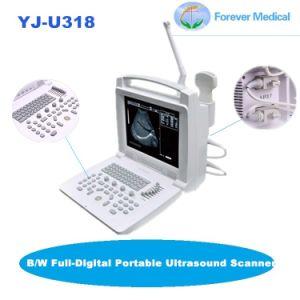 Digital Completo B/W Ultrasonic Scanner portátil com sonda Trans-Vaginal (YJ-U318)