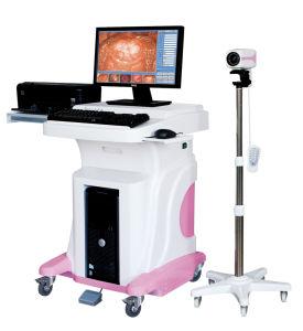 Jy-2620 Digital Video Colposcope in Hospital (Baumuster: Jy-2620)