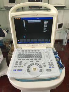 Ultrasone klank van de Scanner van Doppler van de Kleur van China de Draagbare Volledige Digitale
