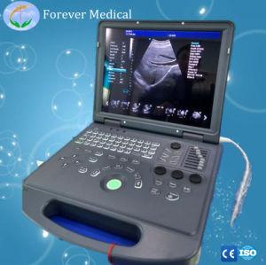 熱い販売の工場携帯用3D/4D超音波