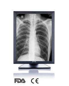 3MP de 21-duim 2048X1536 LEIDENE Zwart-wit Monitor van het Scherm, Ce, Goedgekeurd FDA, de Scanner van de Röntgenstraal