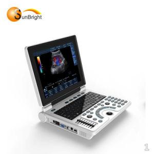安い価格の新しいアップグレードモデル第2 B/W超音波機械