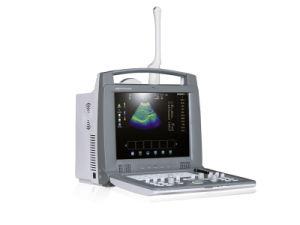 Computador portátil ultra-Doppler a cores 3D do sistema de diagnóstico da máquina de ultra-som