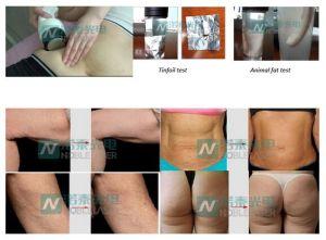 Cuerpo cavitación ultrasonido equipo de belleza adelgazamiento