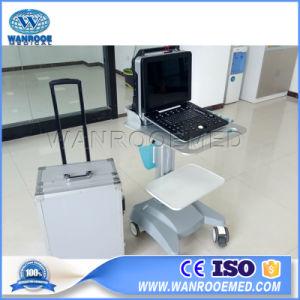 Laptop-Scanner-Geräten-beweglicher Farben-Doppler-Ultraschall des Geräten-Usc300