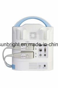 precio de fábrica ecógrafo portátil de 12 pulgadas con sonda lineal
