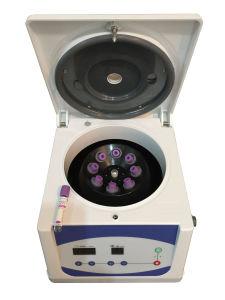 Les fournitures médicales de la plaque de PRP rich plasma prix bon marché centrifugeuse à basse vitesse pour les équipements médicaux