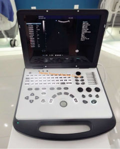 Immaginare lo scanner portatile Pieno-Digitale di ultrasuono di diagnosi B/W (YJ-U580)