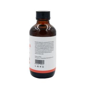 De zuivere Koud geperste Olie van het Zaad van de Rozebottel vermindert de Essentiële Olie van de Littekens van de Acne