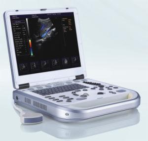 랩 최고 색깔 도풀러 초음파 스캐너 Hy-M80