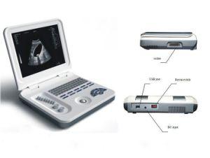 Máquina de ultra-som mais barato, máquina de ultra-som portátil com USB de alta velocidade (MSLPU26)