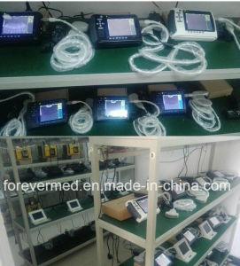 動物のためのデジタル完全な携帯用獣医の超音波