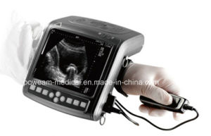 Scanner de ultra-som de modo Wrist Digital B (WHYB2000 Plus)