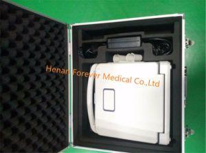 Diagnosesystems-voller Digital-Farben-Doppler-Ultraschall-Scanner (YJ-U60)