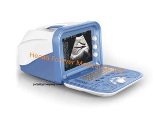 人間および獣医の二重システムデジタル携帯用超音波のスキャンナーYj-U100A