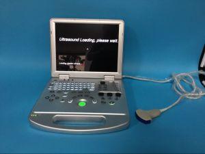 Высокая точность медицинских цифровых портативных ультразвуковых исследований сердца в режиме ЦДК