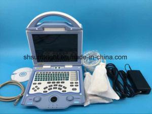 Portable Multilingüe de equipos médicos Ecógrafo Sol-800W Price