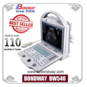 Scanner de ultra-som portáteis, Máquina de digitalização de ultra-som portátil digital, ultra-som