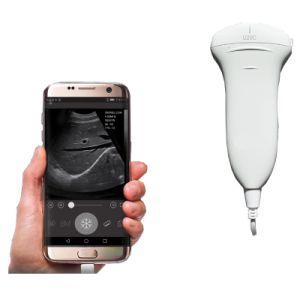USB Type de sonde à ultrasons de la sonde à ultrasons du scanner USB avec des prix bon marché