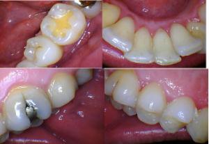 2018 Buen Precio profesional dental digital de alto rendimiento Cámara Intraoral