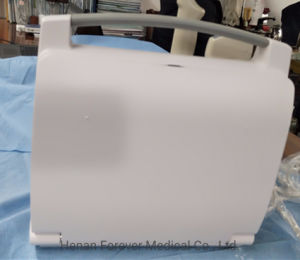 Le système de diagnostic d'instruments médicaux échographie portable