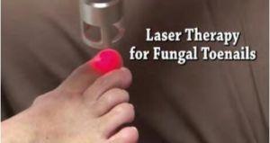 980nm/1064nm dispositivo a laser para pistolas de fungo Extracção/Onicomicose Tratamento