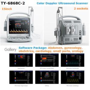 De hand droeg de Klinische Draagbare Scanner van de Ultrasone klank van Doppler van de Kleur